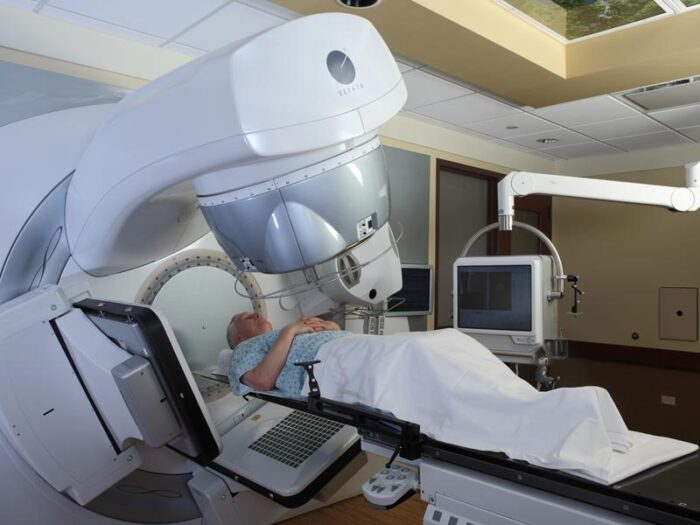 Linear accelerator LINAC therapy