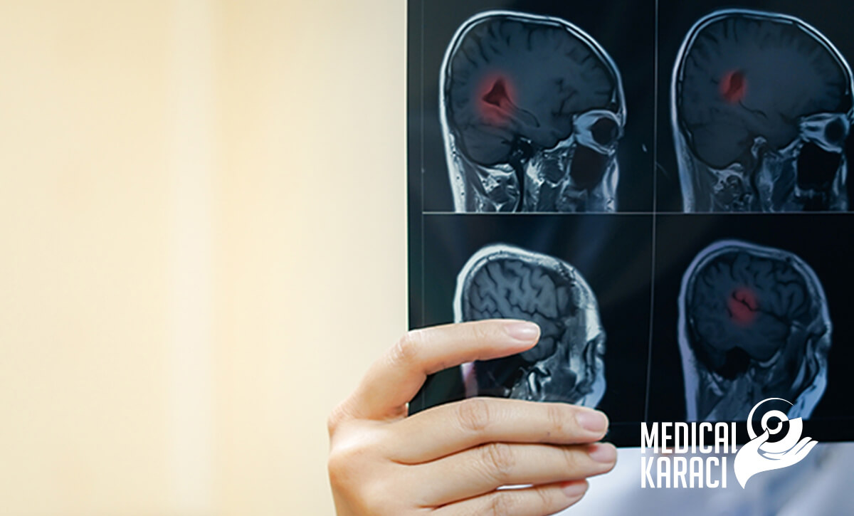 Диагностика на Множествена склероза