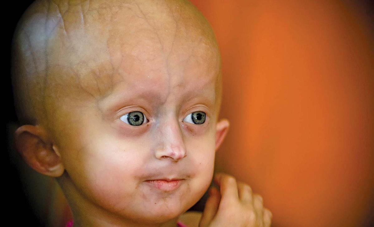 Прогерия или синдром на Хътчинсън-Гилфорд