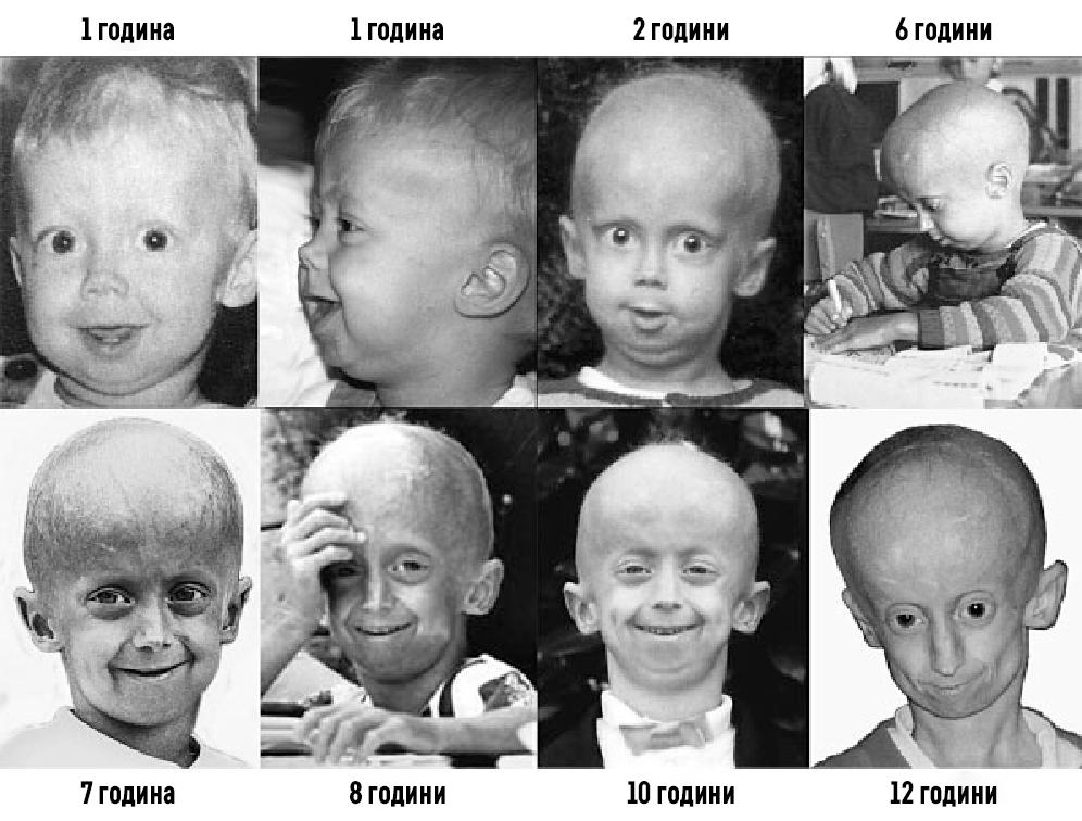 Прогерия или синдром на Хътчинсън-Гилфорд_01