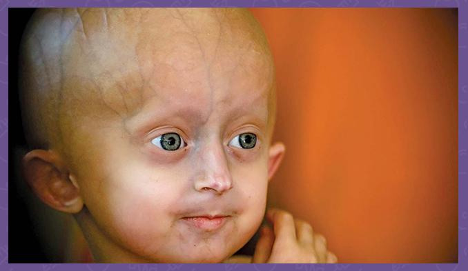Прогерия или синдром на Хътчинсън-Гилфорд - 1 от 10-тте най-редки заболявания