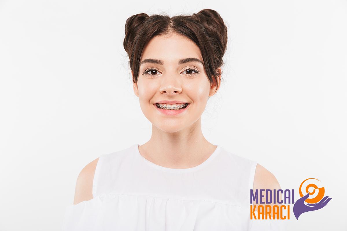 Зъбни брекети - Кога се налага използването им и какви са видовете зъбни брекети