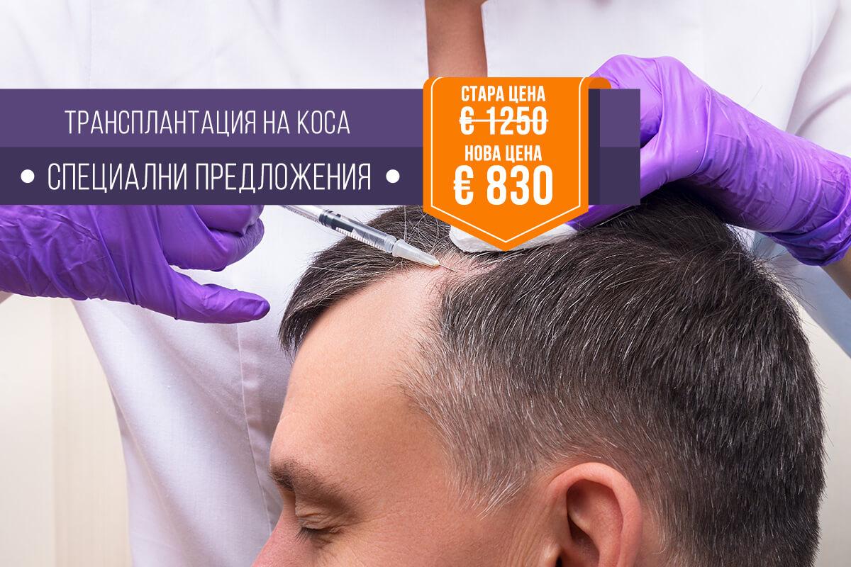 Трансплантация на коса