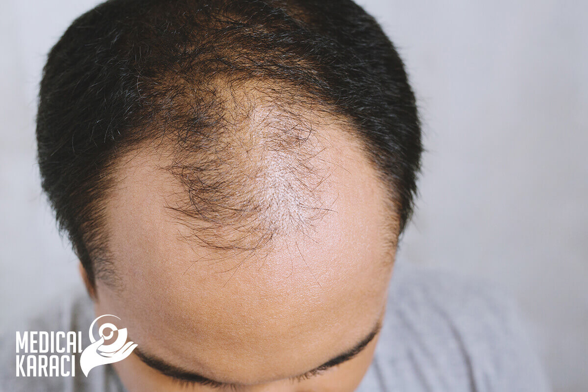 Трансплантация на коса пакети 001