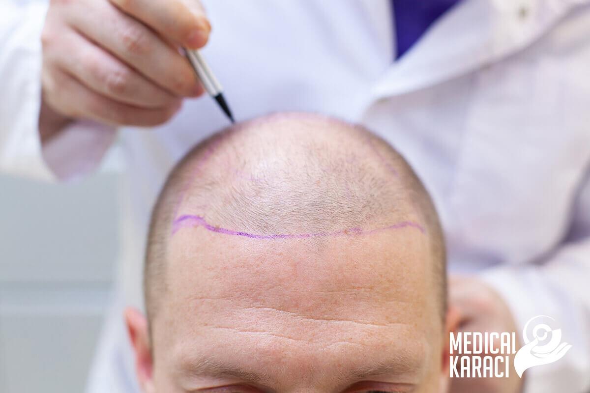 Трансплантация на коса пакети 002
