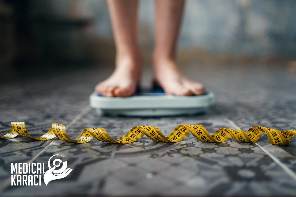 Булимия – Bulimia nervosa